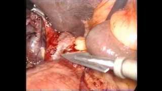 LAPAROSCOPIC BILE DUCT EXPLORATION-Choledochotomy-OBSTRUCTIVE ICTERUS