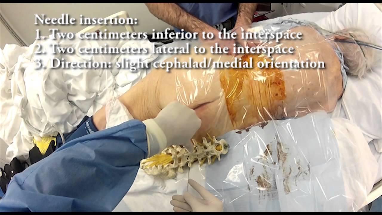 epidural spinal anesthesis