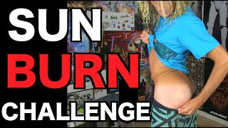 SUNBURN ART CHALLENGE!!! (Do Not Attempt)