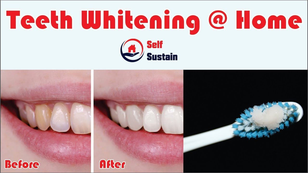 Easy And Simple Teeth Whitening Home Self Sustain Diy Home
