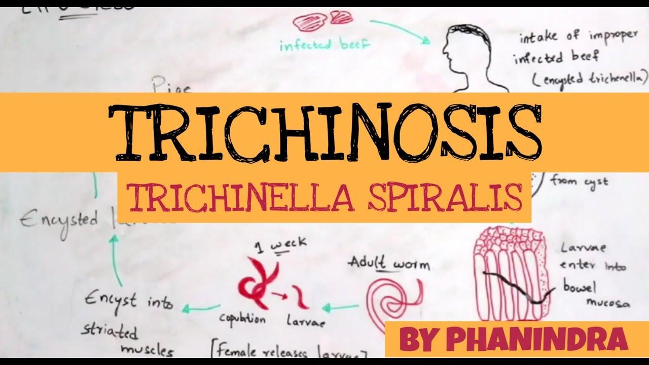 Trichinella férgek