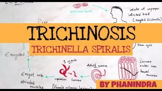 Trichinella animáció. Rendkívüli az idei nyár Romániában
