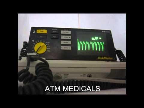 Repeat Philips MRX Defibrillator Operational Check by Binu