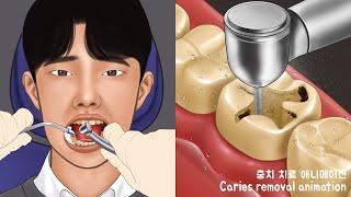 ASMR 환자분 조금만 참으세요 충치치료 애니메이션 Part2 치과 충치제거  Satisfying Caries Removal Animation Dental Care