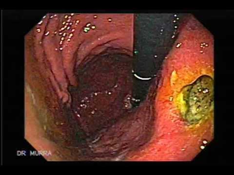 fisiopatologia gastritis