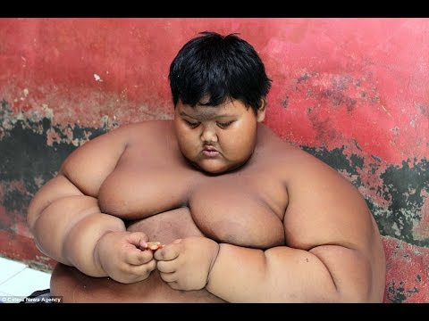 The world's fattest boy who weighs 192 kilos at the age of 10