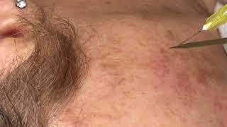 La en cara mejor arañas tratamiento vasculares
