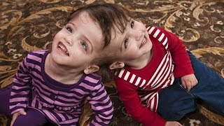 7 Yr Old Twins Share The Same Brain & Can See Through Each Others Eye's