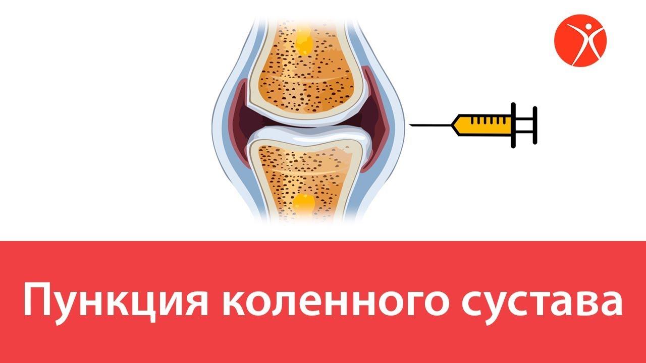 Пункция коленного сустава. Видео