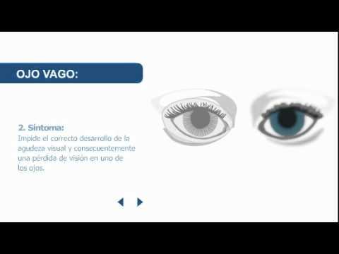 Ambliopía: Tratamiento para el Ojo Perezoso -
