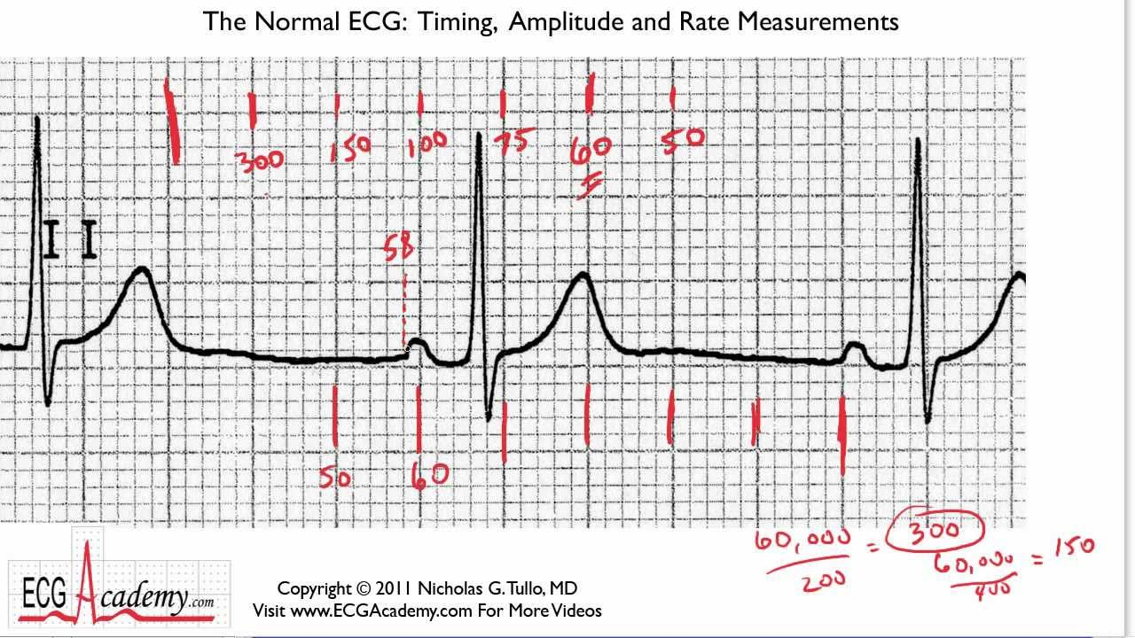 Determining Rate 6-3 - ECG / EKG Interpretation -- BASIC - YouTube