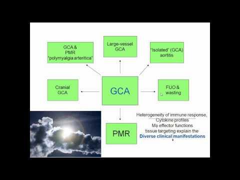 "Polymyalgia Rheumatica and other ""Geriatric"" Diseases"