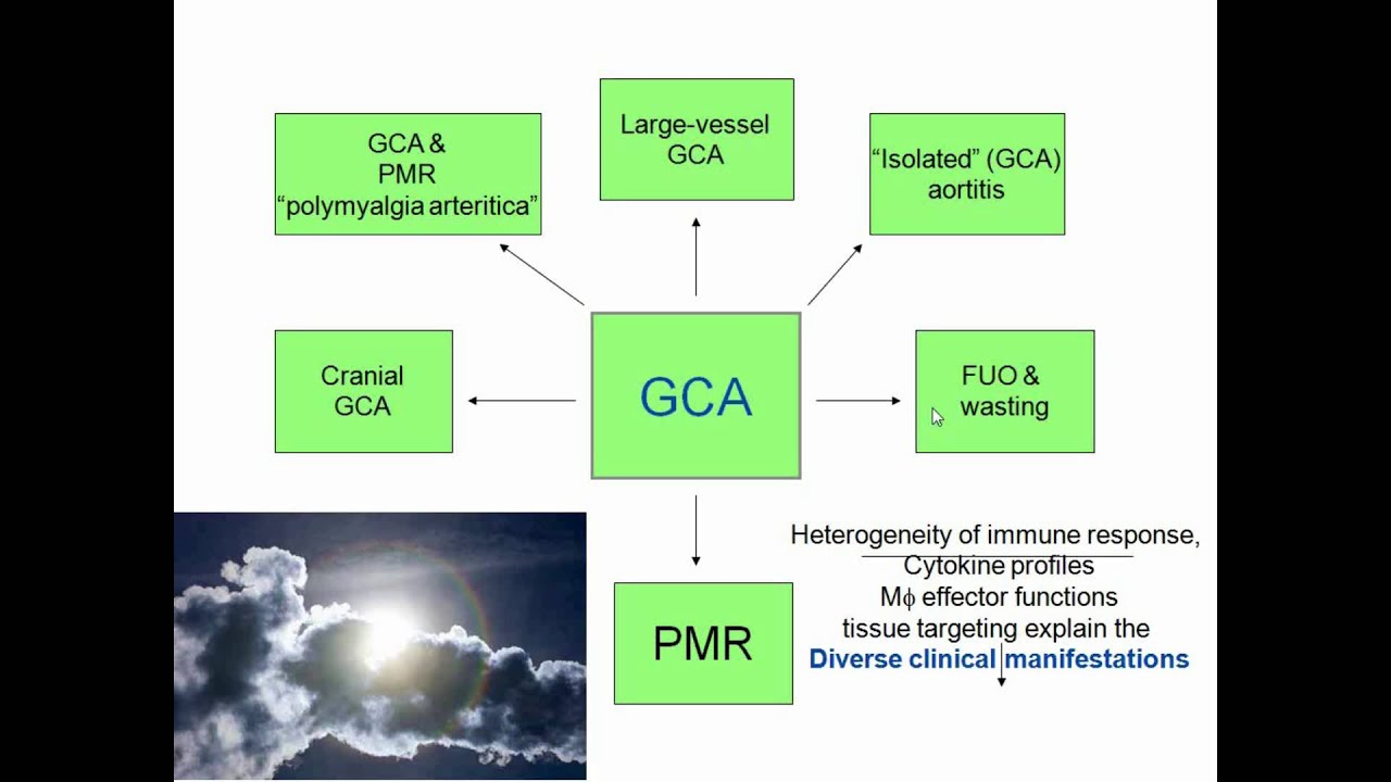 """Download Polymyalgia Rheumatica and other """"Geriatric"""" Diseases"""