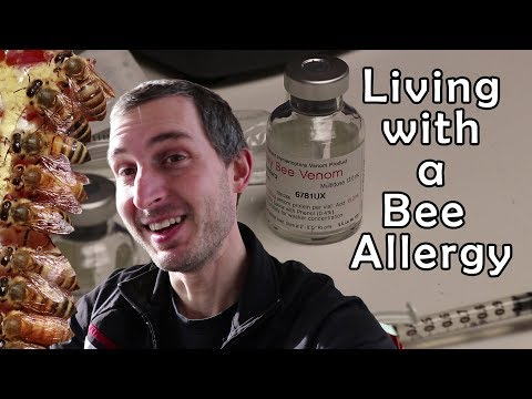 Allergic to bees… and I'm a beekeeper