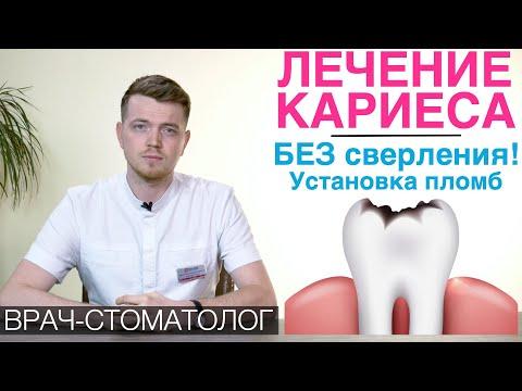 Лечение кариеса на разных стадиях. Лечение кариеса без сверления. Этапы установки зубной пломбы.