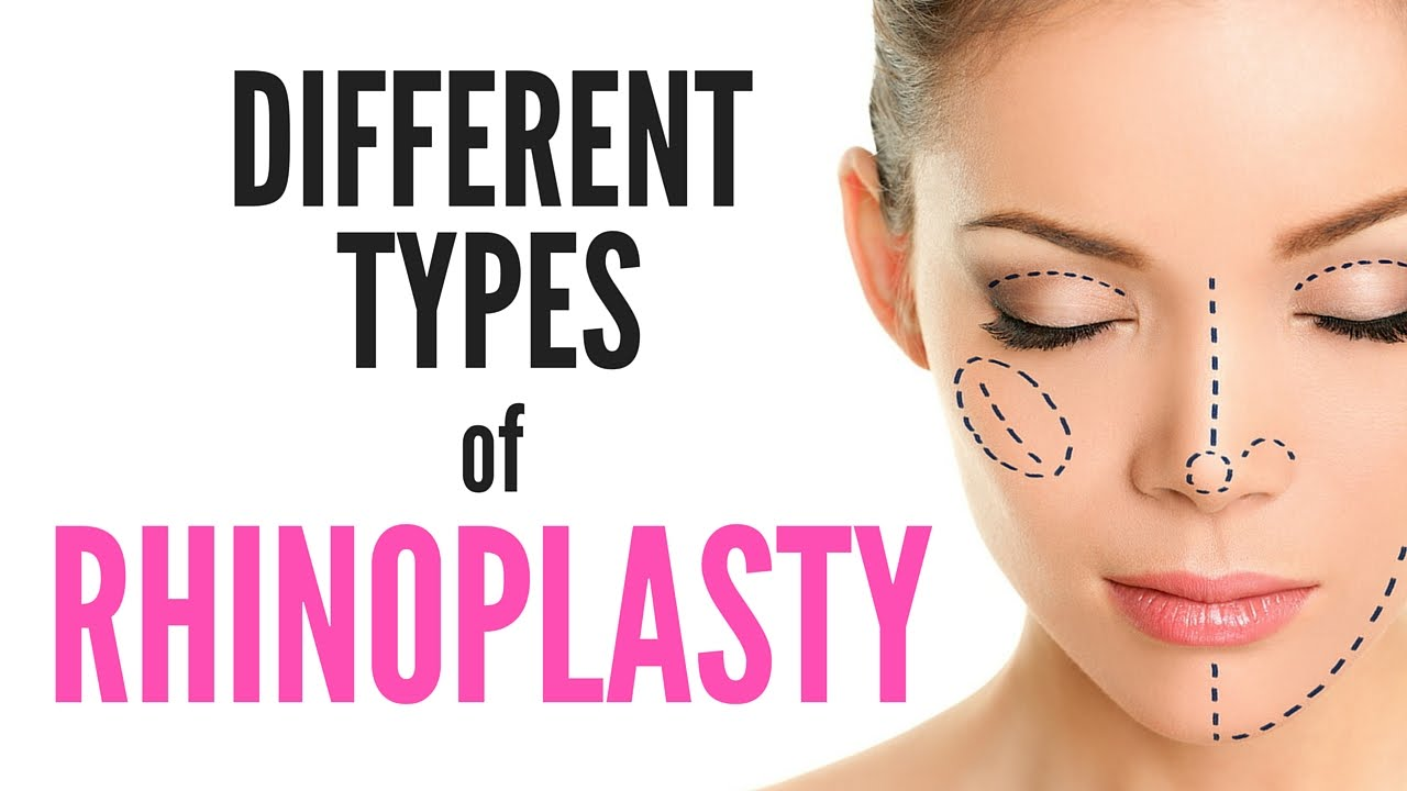 different types of rhinoplasty youtube