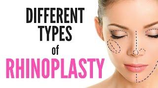 Different TYPES of RHINOPLASTY