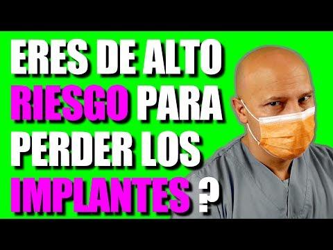 RIESGOS CON IMPLANTES DENTALES, MIRA ESTE VIDEO ANTES DE COLOCÁRTELOS