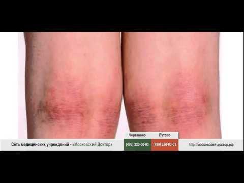 Аллергия на коленях