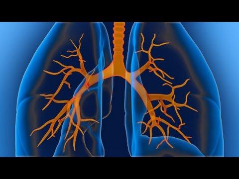 Эффективное лекарство от бронхита и кашля у взрослых
