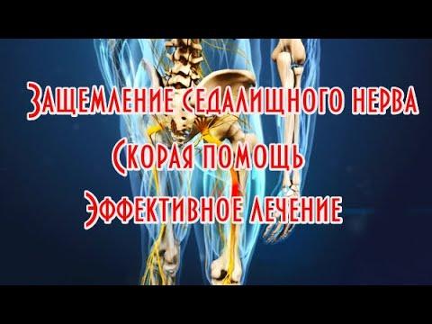 Защемление седалищного нерва. Эффективное лечение. Быстрая помощь при острой боли