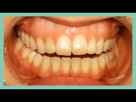 Clear Aligners for treatment of open bite and large over-jet
