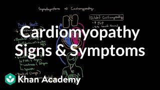 Cardiomyopathy signs and symptoms | Circulatory System and Disease | NCLEX-RN | Khan Academy