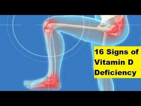 16 Signs of Vitamin D Deficiency   Signs of Vitamin D Deficiency