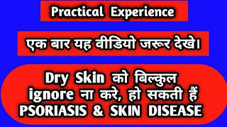 Dry Skin, Skin Diseases, Psoriasis treatment (part-1)