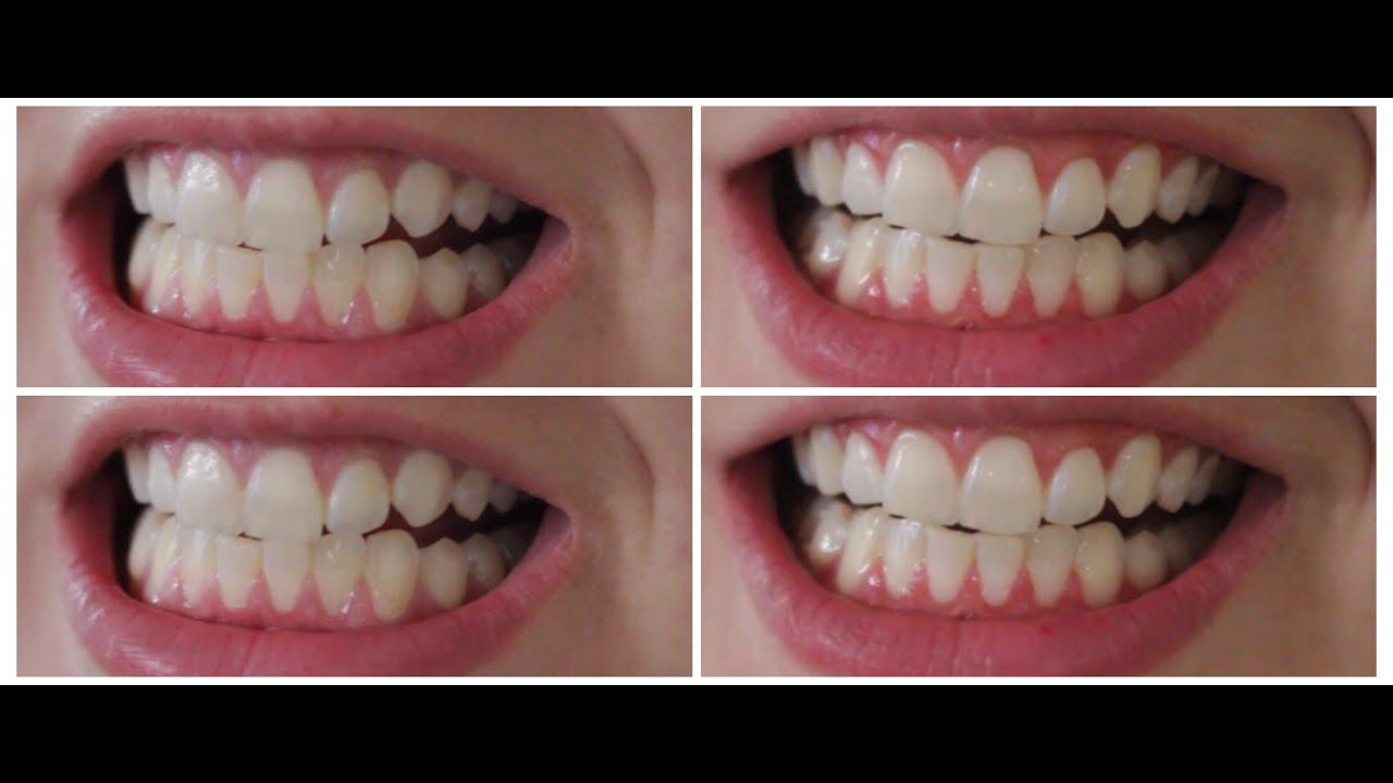Clareamento Dentario Caseiro Dicamaradaachilla Youtube