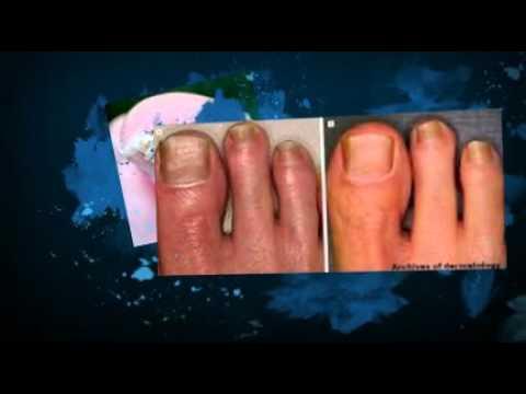 Natural Remedies for Nail Fungus Vicks.mp4 - YouTube