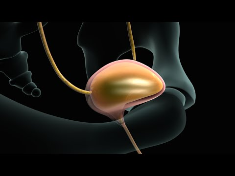 cystoscopy-(bladder-endoscopy)