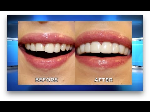 NEW The Doctors NO DENTIST Mail Order Dental Veneers Online - Seen On TV - Brighter Image Lab