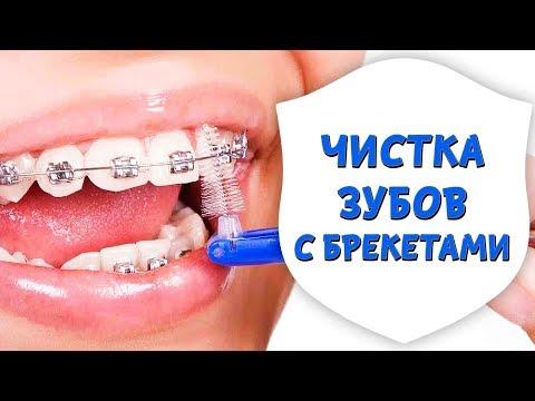 Как правильно чистить зубы с брекетами. Гигиена зубов с брекет-системой   Доктор Д   Дентал ТВ
