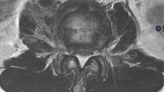 MSK Trauma C7 MR Burst Fracture A