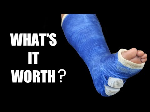 Broken Leg (Tibia and Fibula) Settlements: Car Accidents and More