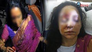 हेमा को CAR ACCIDENT में लगी थी भयानक चोट, आँख में हुआ...| Hema Malini Car accident, Injured