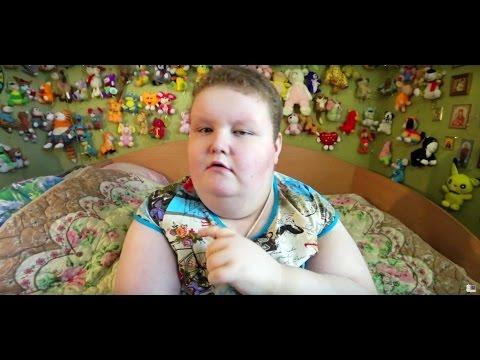 Синдром Прадера-Вилли у детей-Детские болезни