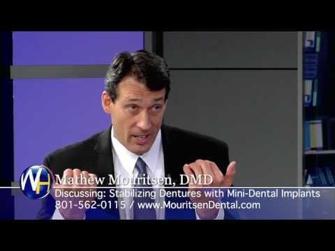 Replacing Missing Teeth with Mini-Dental Implants with West Jordan, Utah Dentist, Mathew Mouritsen