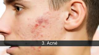 Les maladies de la peau les plus courantes