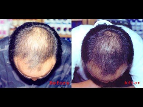 Quot Argan Oil Quot Hair Regrowth Youtube