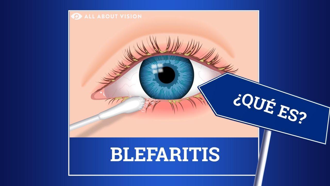 medicina para infeccion de ojos