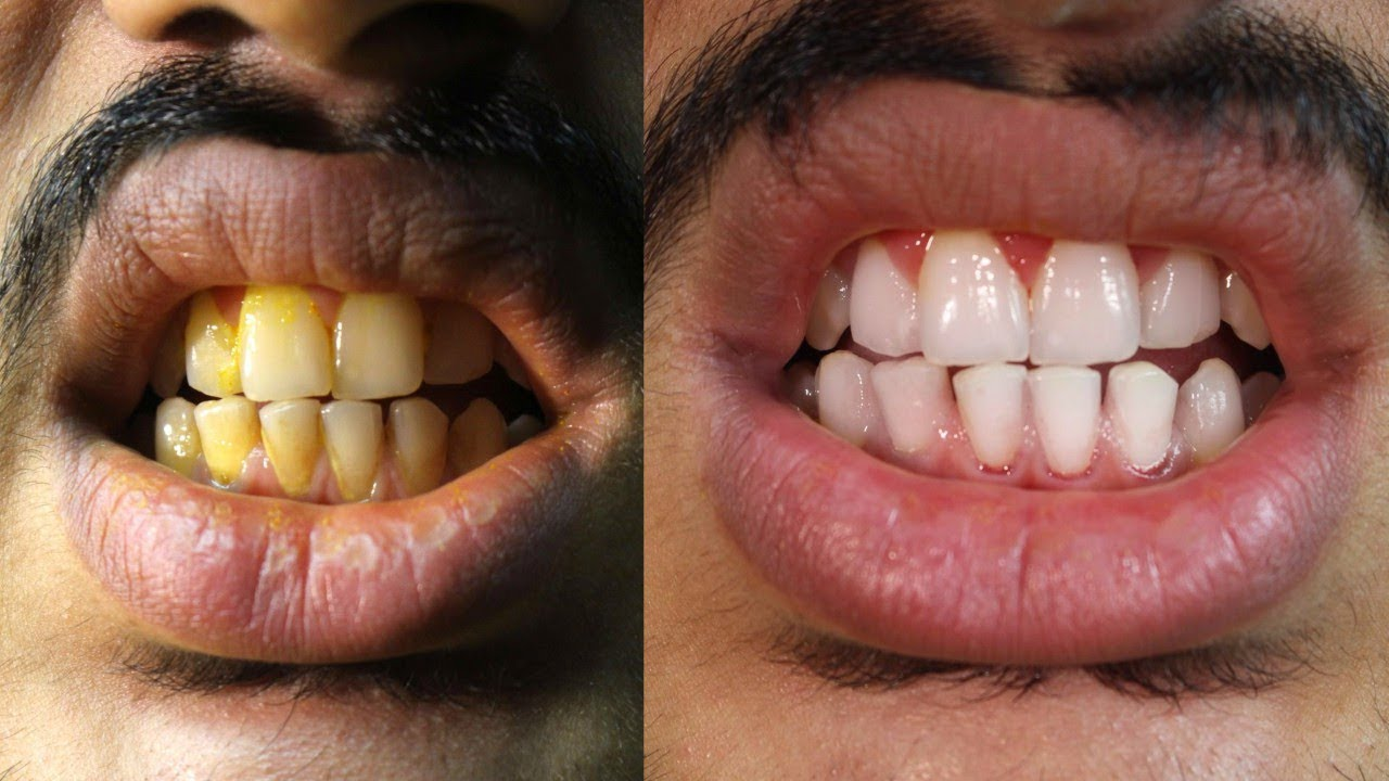 I Applied This Teeth Whitening Remedy For 5 Days My Dentist Was