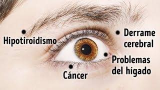 8 Cosas Que Tus Ojos Dicen Sobre Tu Salud