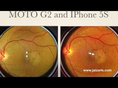 All you want to know about Smartphone Imaging of Retina