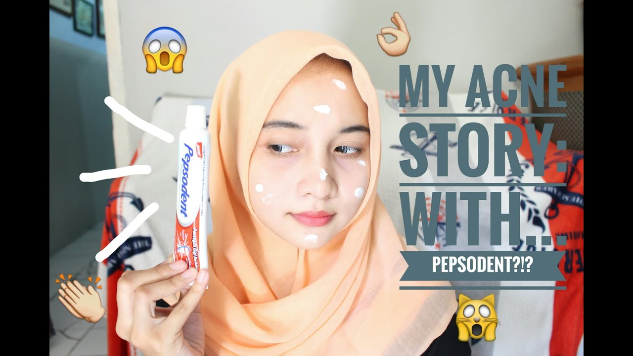 My Acne Story With Pepsodent Youtube