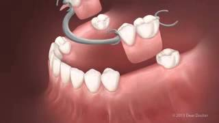 Glendora Cosmetic Dentist | Removable Dentures Thumbnail