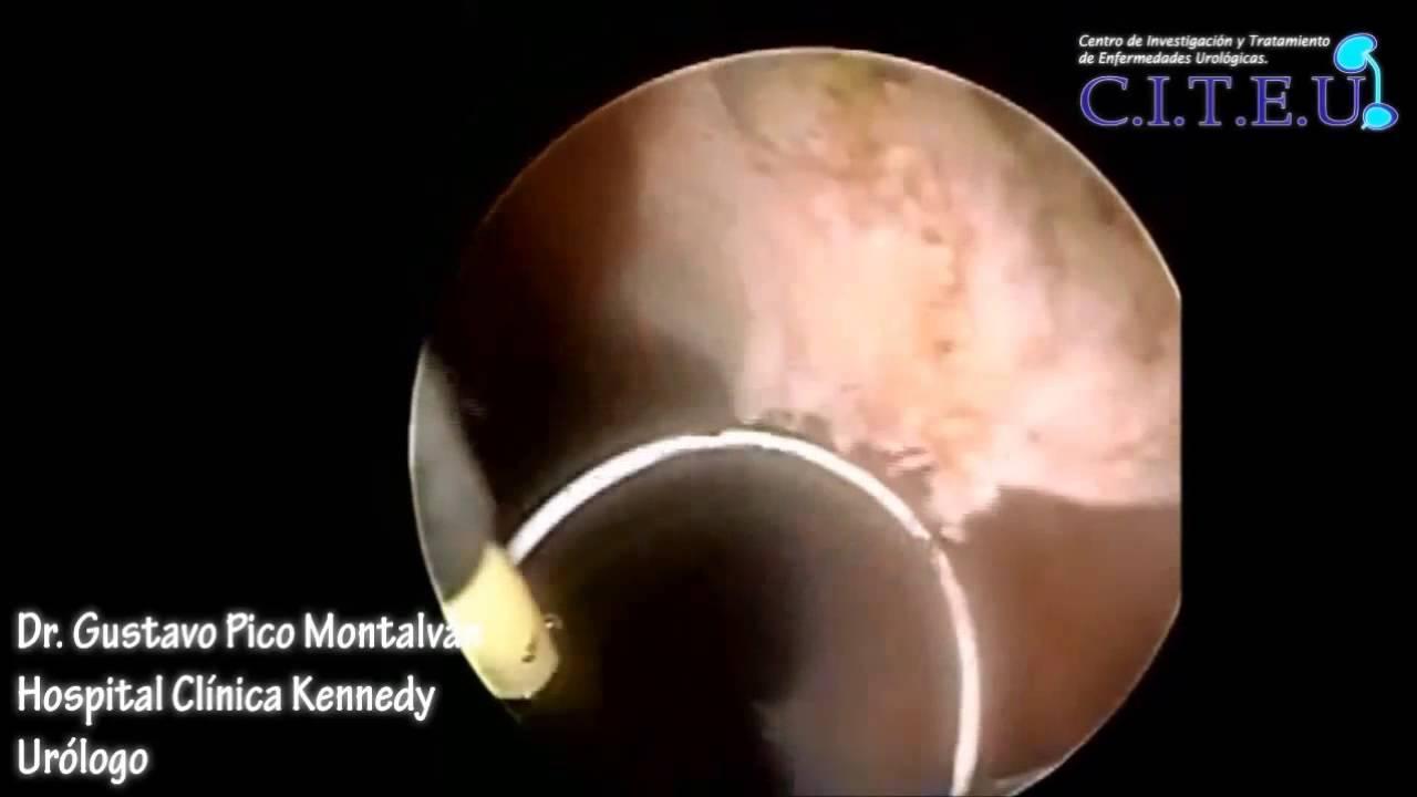 reseccion de prostata bipolar