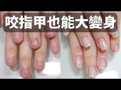 咬指甲也能大變身-矯正指甲順便做藝術指甲 指甲變長的成功案例