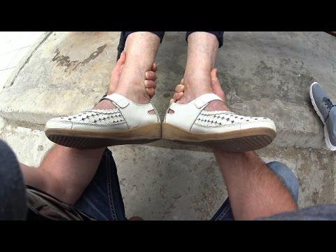 Как разработать ногу после перелома, реабилитация, массаж